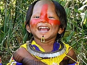 Criança indígena queimada