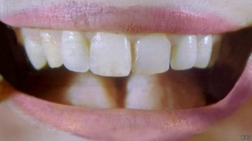 dente-urina-china-2