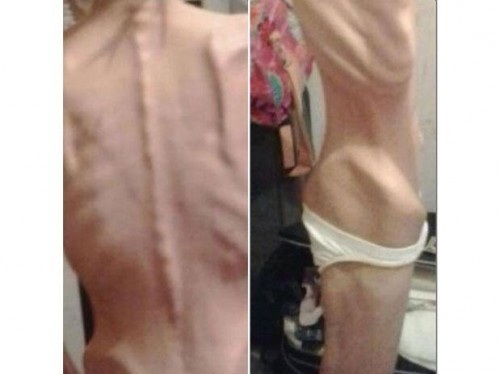 mulher anorexia 24kg
