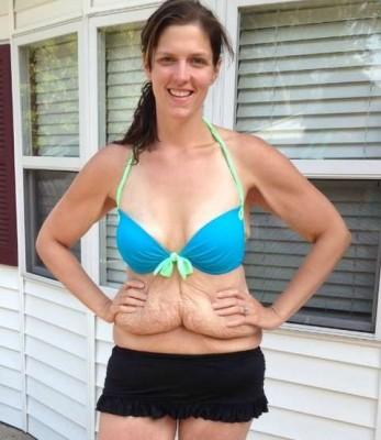 mulher perde peso kg