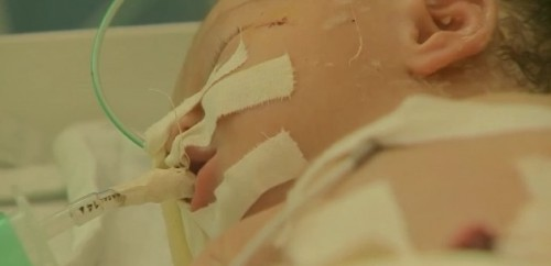 bebê nasce morte mãe grávida gaza