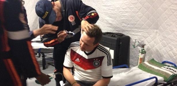 torcedor alemão agredido ouvido audição