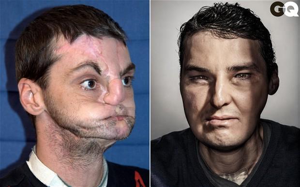 homem transplante facial rosto richard