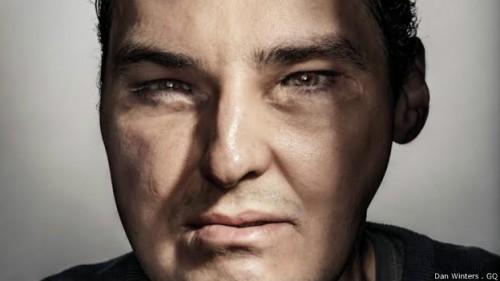homem transplante rosto