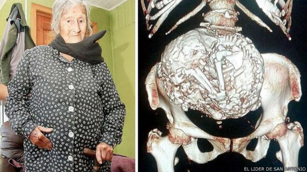 idosa feto mumificado Chile