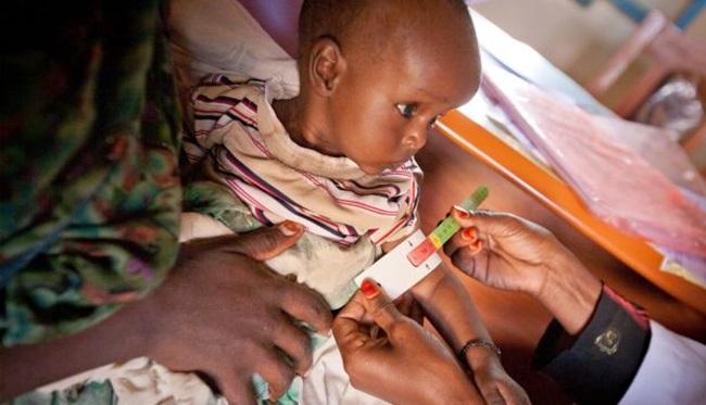 áfrica crianças desnutrição aguda grave 1 milhão