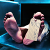 morto-paciente-mantem-ondas-cerebrais-por-10-minutos