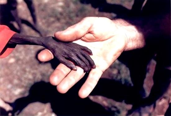 africa fome miseria
