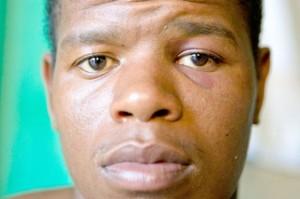 Policiais torturam jovem negro choques nos genitais uberaba
