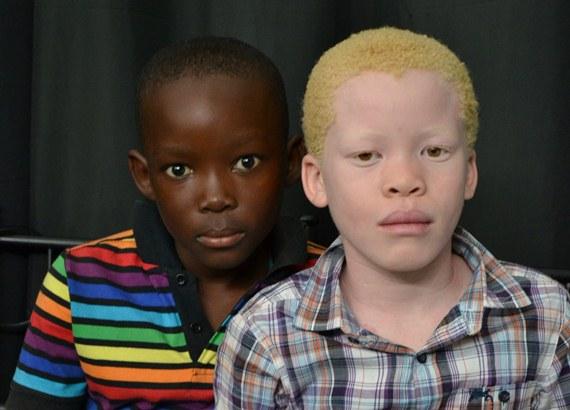 albinos áfrica