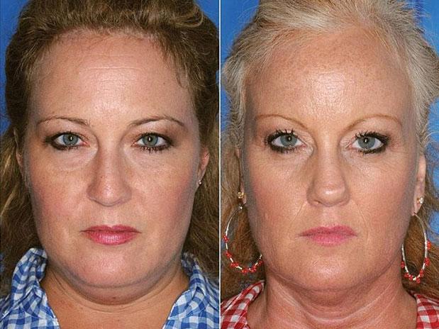 Comparação de gêmeos fumantes e não-fumantes