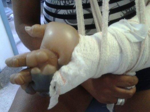 mulher morre braço fraturado