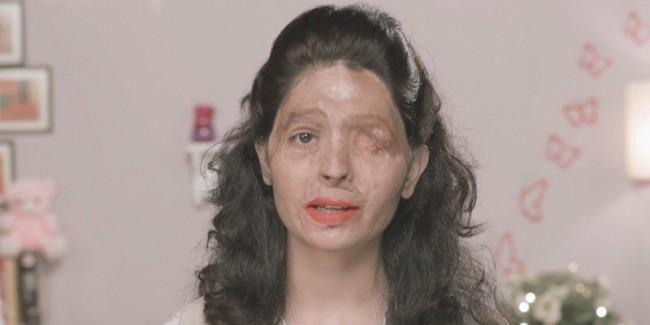 mulher índia ácido atacada rosto