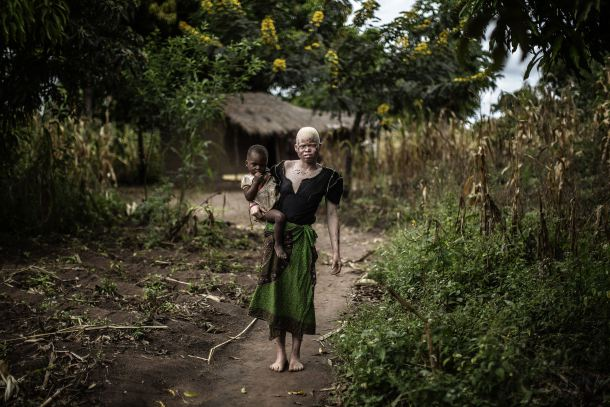 -- AFP PICTURES OF THE YEAR 2015 -- Mainasi Issa, a 23-year-old Malawian albino woman, carries her tow-year-old daughter Djiamila Jafali as she poses outside her hut in the traditional authority area of Nkole, Machinga district, on April 17, 2015. Six albinos have been killed in the poor southern African nation since December, according to the Association of Persons with Albinism in Malawi. AFP PHOTO / GIANLUIGI GUERCIA