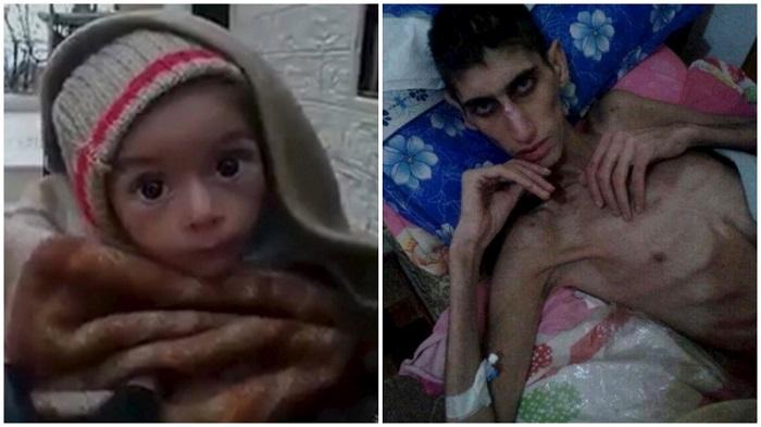 Sírios estão morrendo fome Madaya