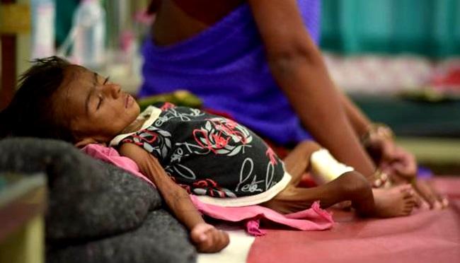 fome miséria desperdício alimento desnutrição