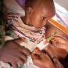 africa-quase-1-milhao-de-criancas-tem-desnutricao-aguda-grave