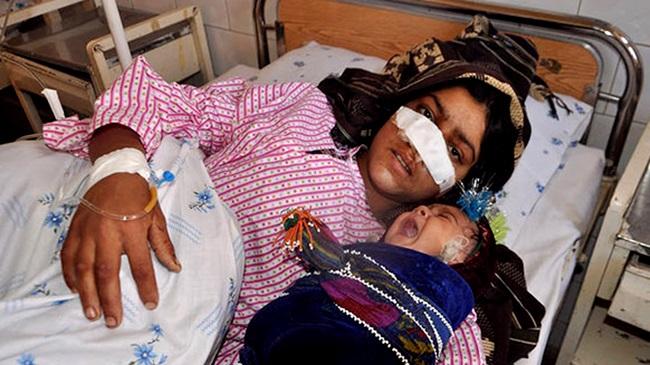 mulher afeganistão nariz cortado marido