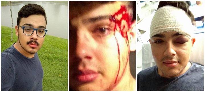 Resultado de imagem para violencia homofóbica no brasil