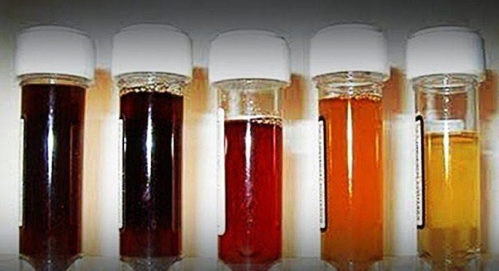 doença da urina preta Brasil Bahia
