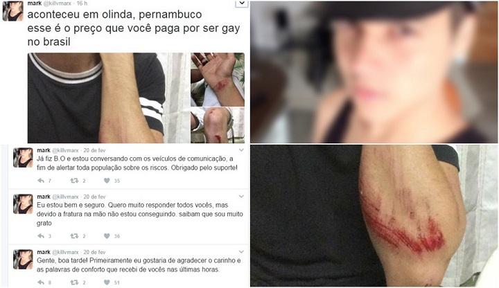 Universitário vítima de homofobia jovem gay olinda agredido carnaval