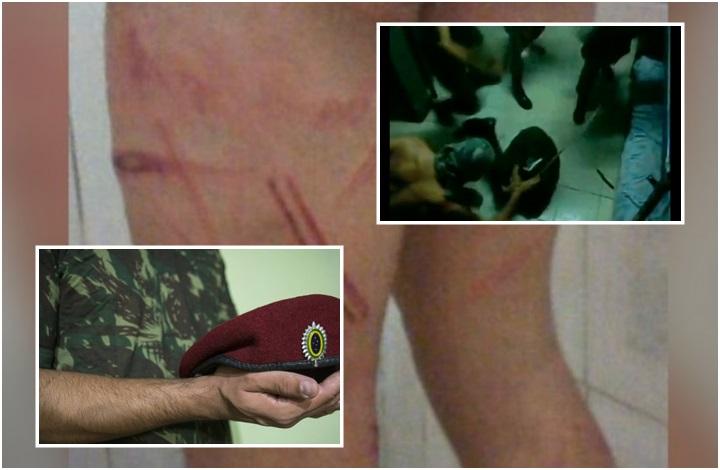 soldado exército trote tortura testículo