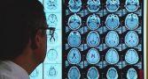 cuba-medicamento-combate-alzheimer