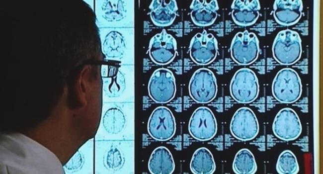 cuba testa medicamento combate alzheimer