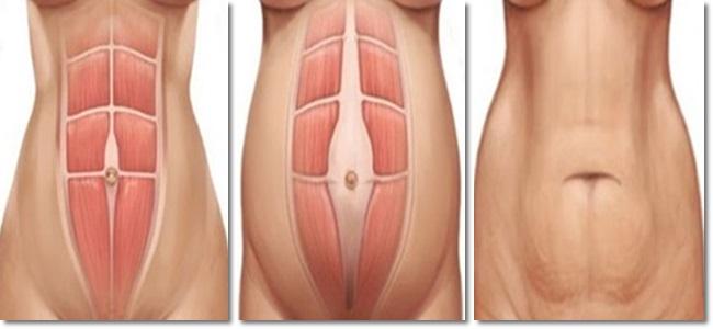 separação dos músculos abdominais pós gravidez