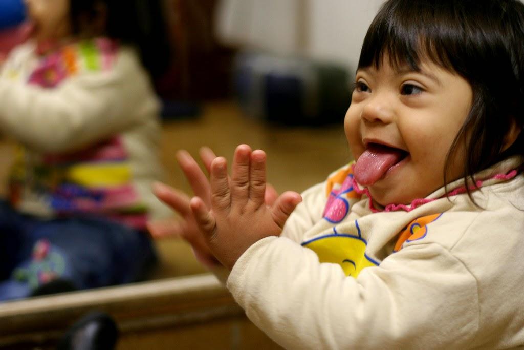 criança deficiente síndrome de down