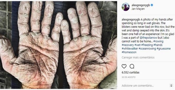 remador olímpico divulga foto mãos brutal esporte