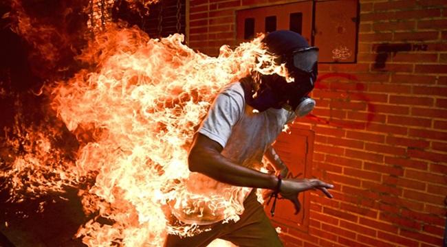 Imagem de jovem em chamas ganha prêmio de foto