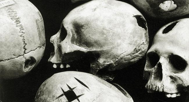Incas praticavam cirurgias mais bem sucedidas que médicos do século 19