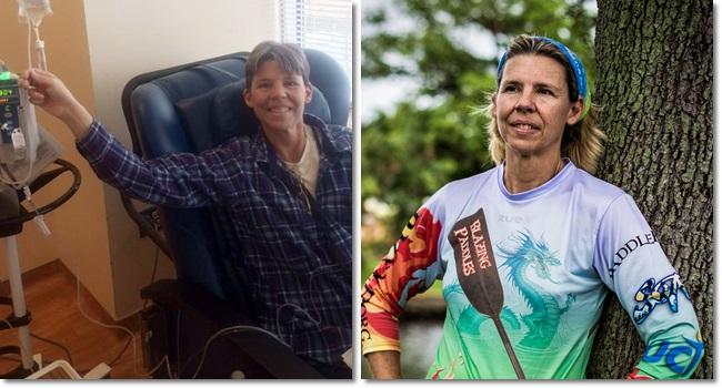 Judy Perkins Mulher com câncer em estado terminal melhora após terapia experimental