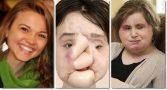 menina-suicidio-transplante-facial