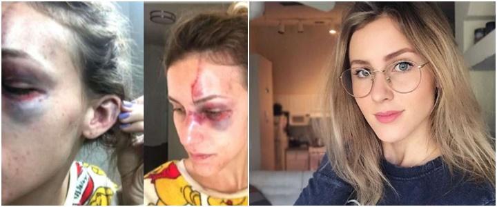 Melissa Gentz agredida namorado