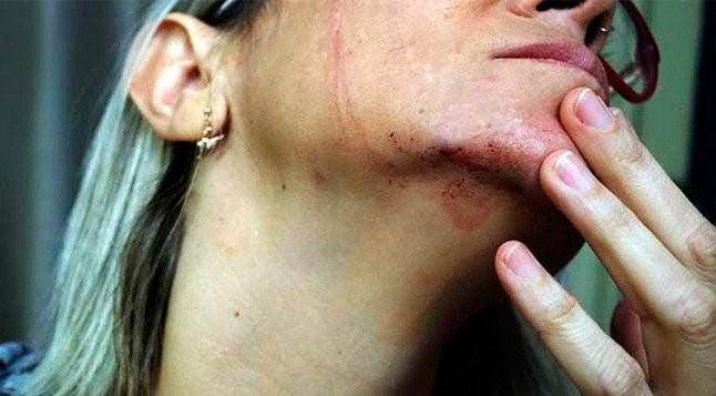 jornalista agredida estupro bolsonaro