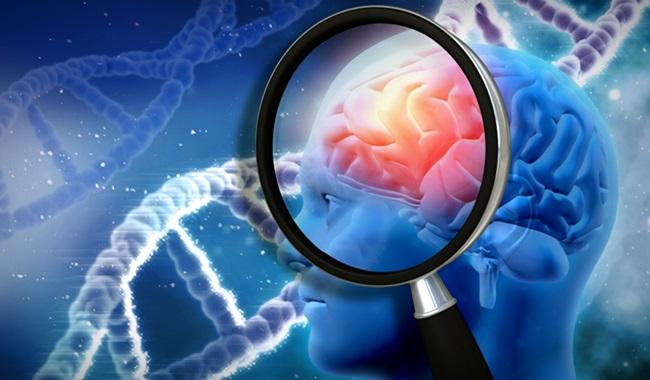 Gigante farmacêutica ocultou fármacos prevenir Alzheimer