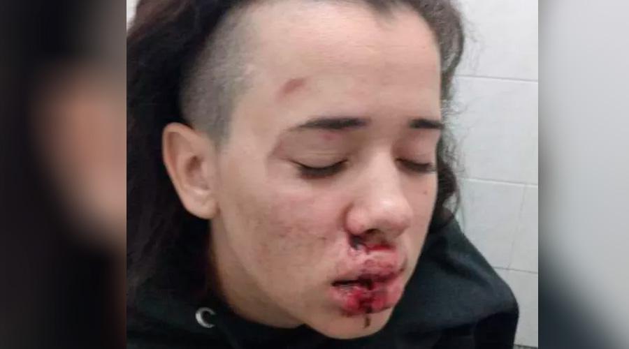 agredida por ser lésbica jovem