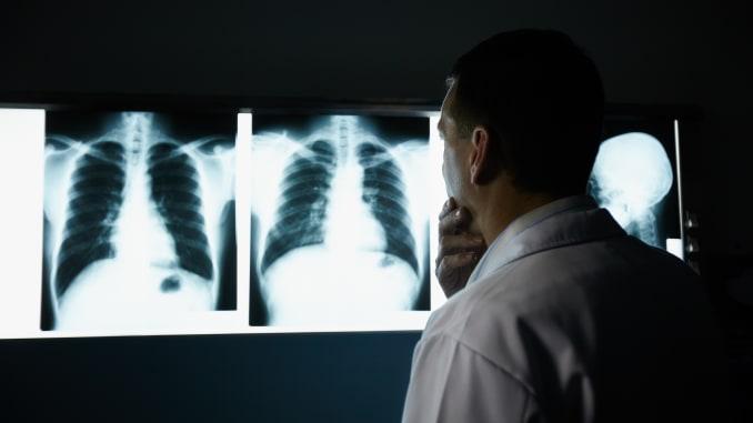pulmões coronavírus