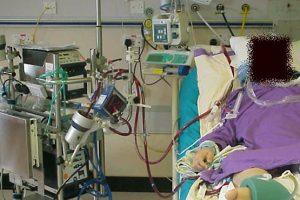 respiracao-fora-do-corpo-tecnologia-salva-vidas-pandemia-coronavirus