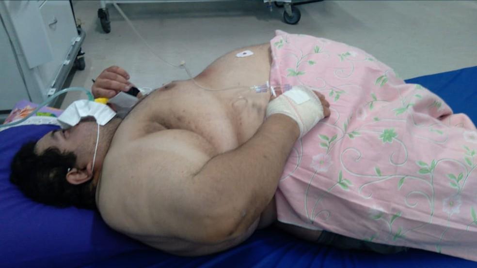 paciente 300 quilos natal
