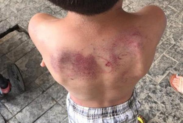 menino torturado balneário camboriú