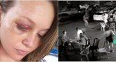 mulher-agredida-ex-marido