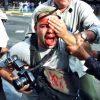 fotografo-perdeu-olho-protesto-anos-luta-indenizacao