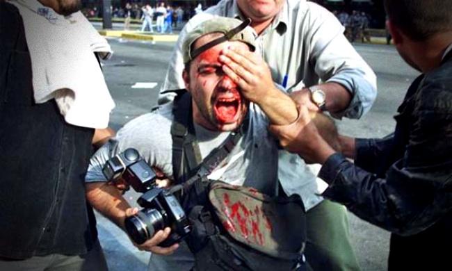Fotógrafo perdeu olho protesto luta indenização são paulo