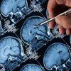 figado-produz-proteina-desencadeia-alzheimer-revela-estudo
