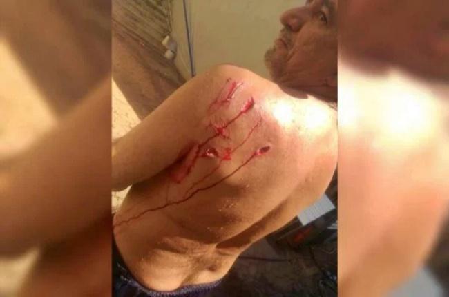 VÍDEO Marinheiro atacado por capivara lago Brasília