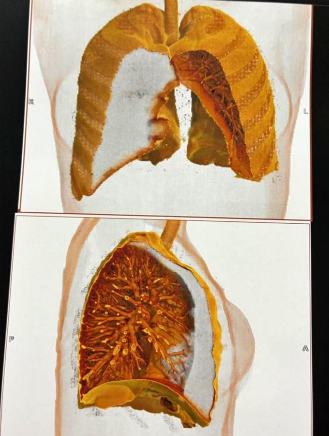 Empresária pulmão perfurado durante sessão acupuntura