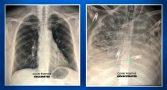 medico-mostra-efeito-covid-pulmao-vacinados-nao
